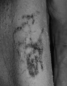 WARNING COLLECT IMAGE TAKEN FROM THE INTERNET CAPTION: Scientists discover the world's oldest TATTOO on an Egyptian mummy dating back 5,200 years LINK: